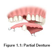 shineDentalDentalMissingTeethSingleToothPartialDenture.jpg