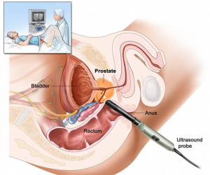 Transrectal ultrasound