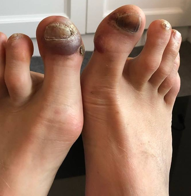 My feet were in a pretty bad way after the North Downs Way 100 mile race. Although that isn't the biggest blood blister I've had from running!