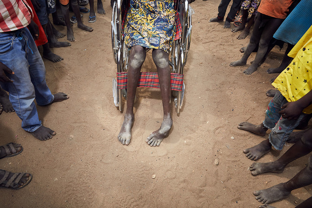 Nyamit's feet