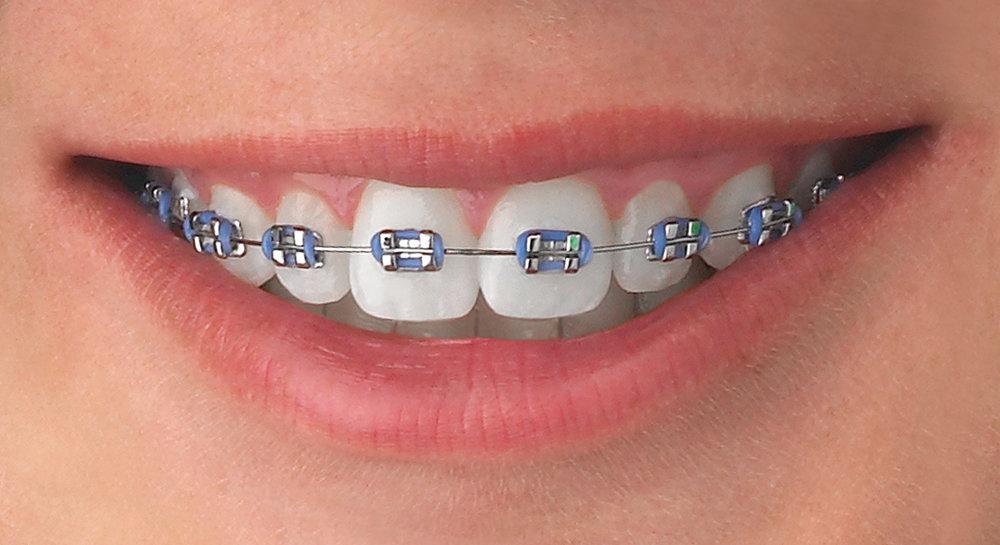 Teeth-MiniMaster.jpg