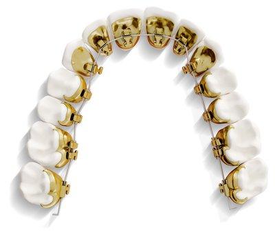 braces-custom-hidden-lingual-orthodontics.jpeg