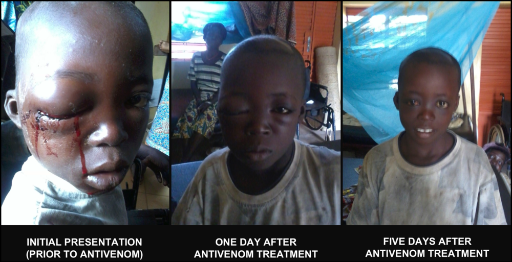One of our patients in West Africa before and after treatment with antivenom. He made a full recovery and went home with a smile and a new pair of shoes we purchased for him. This is why we are so passionate about what we do and also why we need your support.