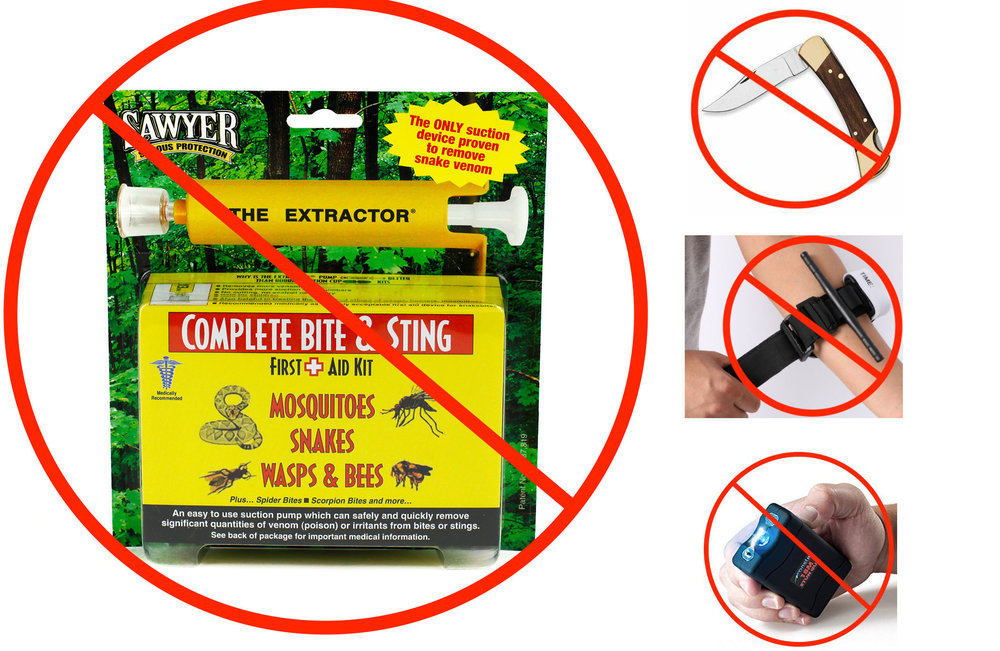 "Tourniquets, pocket-knives, tasers, and commercial snakebite ""venom extractors"" are terrible for snakebites and are only going to worsen your odds of losing life or limb. If an idea sounds ridiculous that's because it probably is..."