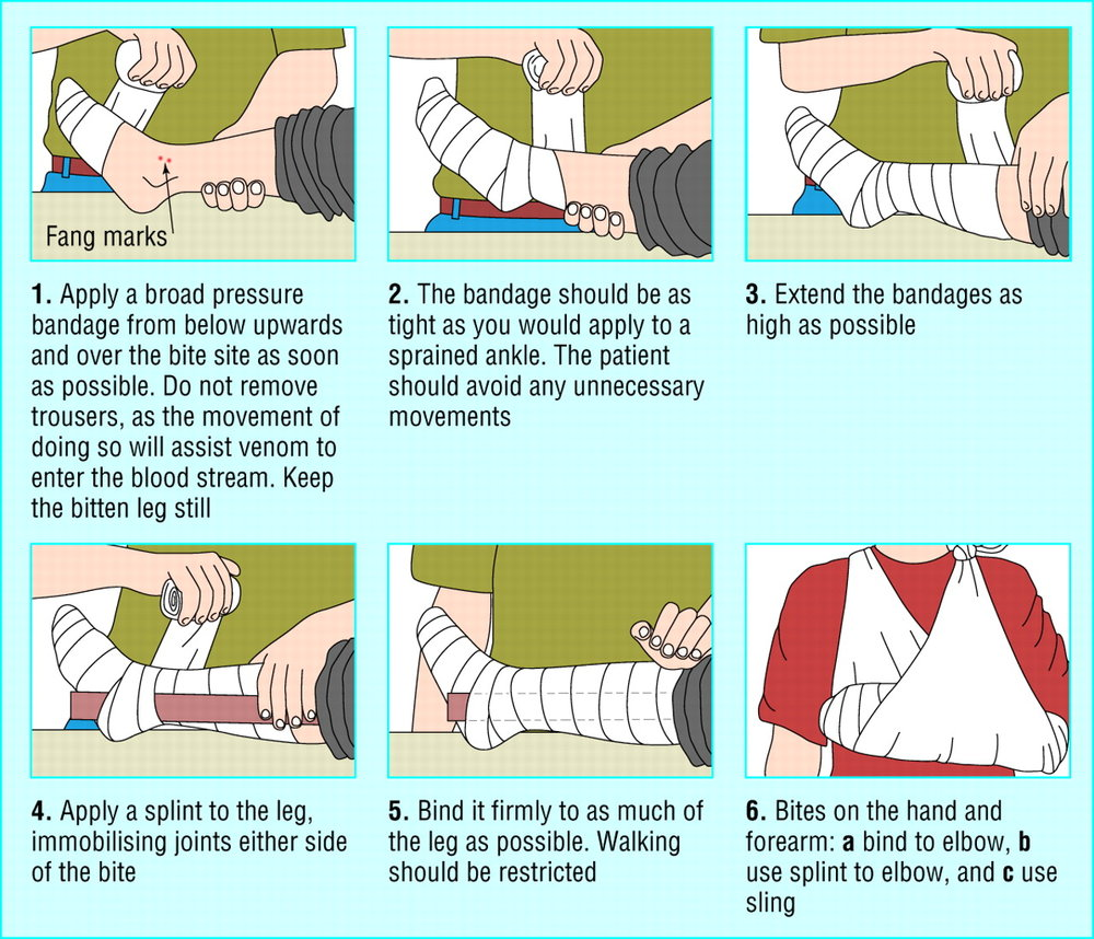 How to apply a pressure-immobilization bandage to a patient with a neurotoxic snakebite. This great figure comes from the following paper: Warrell, D. A. (2005). Treatment of bites by adders and exotic venomous snakes. Bmj, 331(7527), 1244–1247. http://doi.org/10.1136/bmj.331.7527.1244.