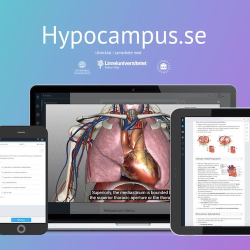 Hypocampus is in! -
