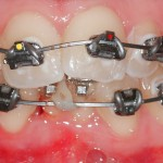 Braces fitted on 1st Appointment