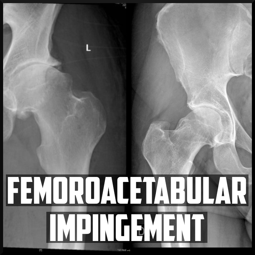 femoroacetabular impingement cover.png