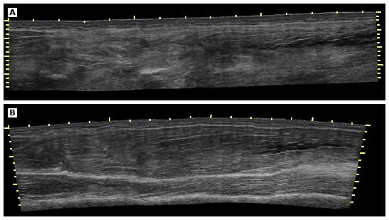Figure 4 : Ultrasound appearance of normal and injured hamstring muscle . [Source: https://www-uptodate-com.une.idm.oclc.org/contents/images/EM/91240/Hamstr_inj_ultrasound.jpg]