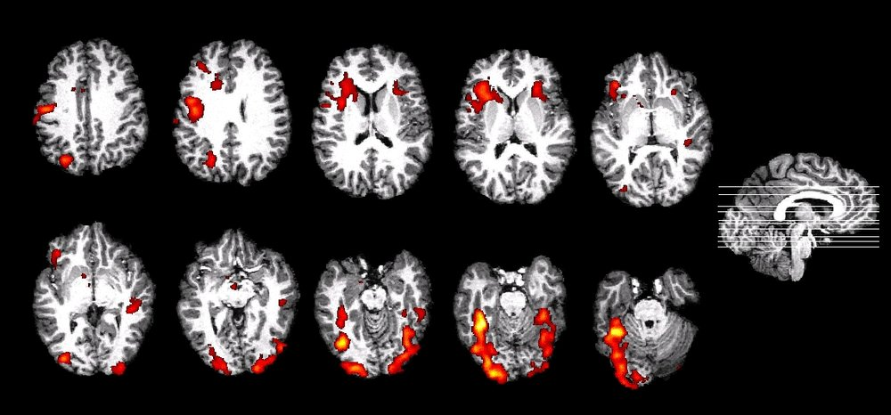 https://med.nyu.edu/thesenlab/research-0/research-functional-magnetic-resonance-imaging-fmri/