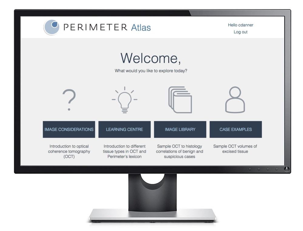 perimeter_atlas.jpg