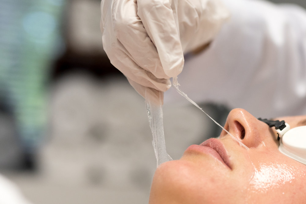 MD CHEMICAL PEEL -
