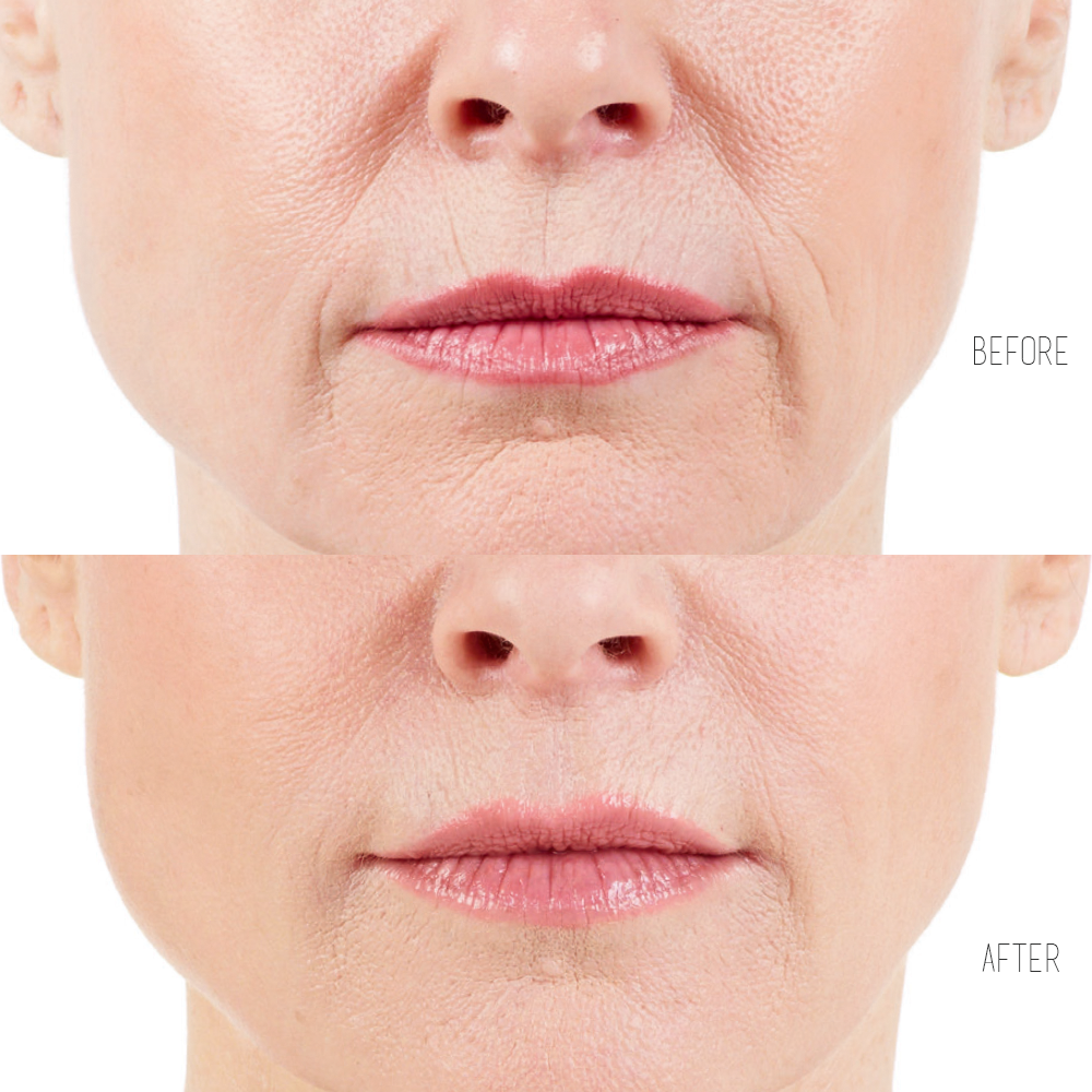 ultra xc to smooth wrinkles around mouth
