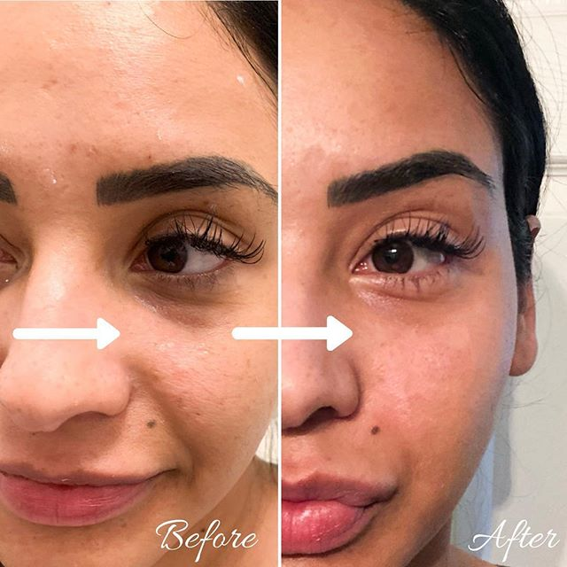 The most refreshing treatment by far is tear trough filler!! We also treated cheeks to give a beautiful contour and lift! It even softened the nasolabial folds! • Link in bio for booking!💉 • Please plan ahead and book your appointments! • Currently offering $100.00 off ALL syringes for Black Friday and accepting appointments • • #teartroughfillers #scottsdale #azmua #phoenix #cheekfillers #contouring #jawlinefiller #scottsdalelips #scottsdalebotox #botox #fillers #restylane #juvederm #juvedermlips #slay #yas #beforeandafter #photooftheday #instaglam #instabeauty #beauty #glam #vibes #selflove #beforeandafter #facials #nurselife #antiaging #plasticsurgery
