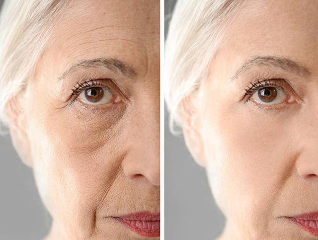 😱What if we CAN achieve these results for you?  #embrowbeauty #customskinsolutions  #maione #hydrodermabrasion #omnilux #elizabethardenpro #janeiredale #antiaging #reverseaging #sydneybeautysalon #sydneyskincare #sydneyinjectables #rhodes #darlingharbour #harboursideshoppingcentre #wheresydneycelebrates #sydneylife #beecroft