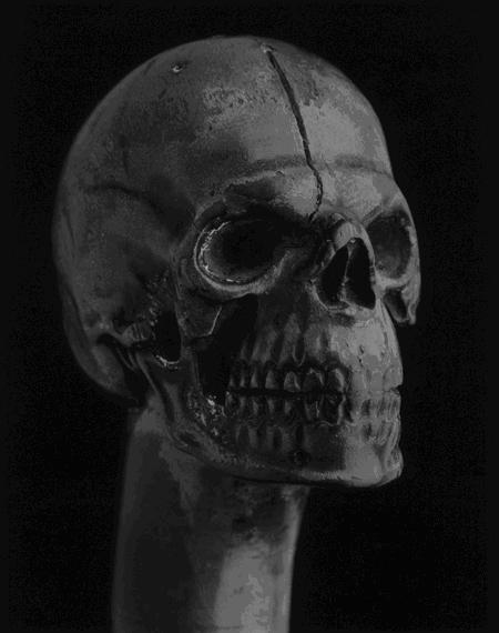 Robert Mapplethorpe,  Skull Walking Stick , 1988