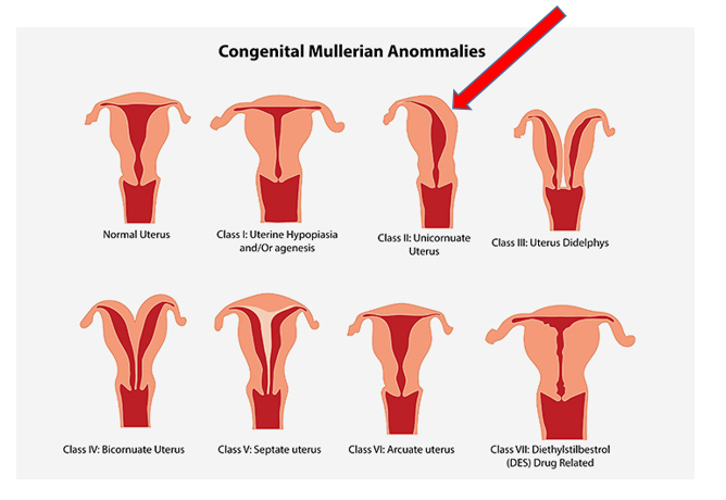(Photo cred:   http://www.momjunction.com/articles/uterine-abnormalities-during-pregnancy_00398428/?ref=content/