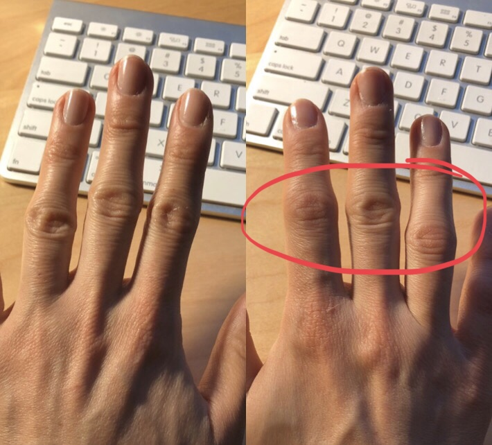 Can you tell a difference between my left hand (left) and right hand (right)? My right hand is flaring today, and the middle joints of the three middle fingers are swollen and stiff. Ouch!