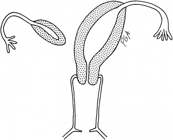 This is a drawing of a unicornuate uterus (right) connected to one ovary with a rudimentary horn connected to the other ovary (left). This is what I have, except mine is flipped (right UU with left horn). Photo credit:  here