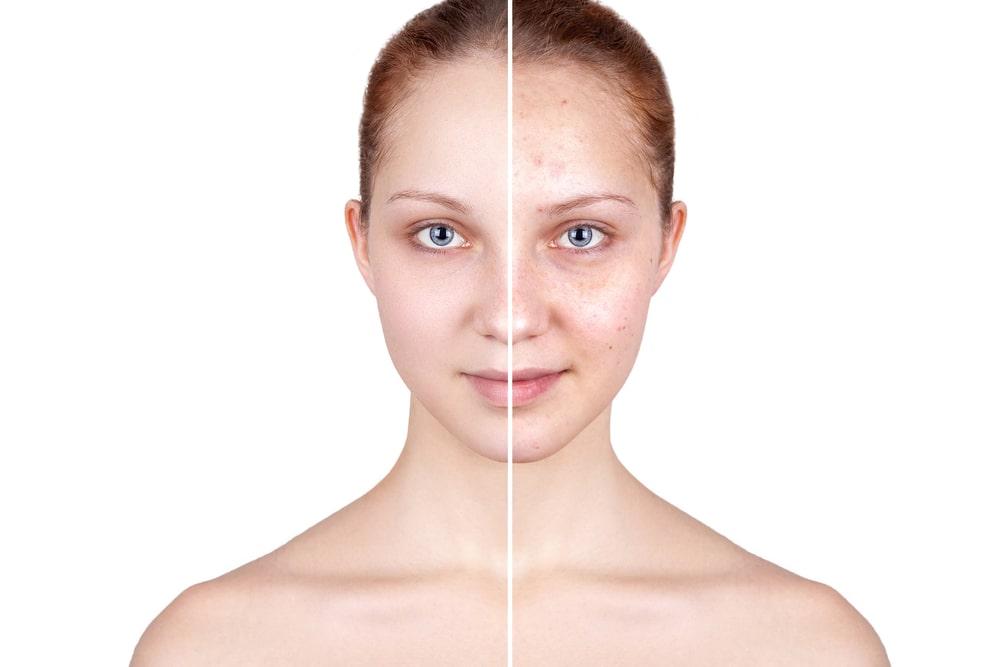 Acne/Problematic Skin