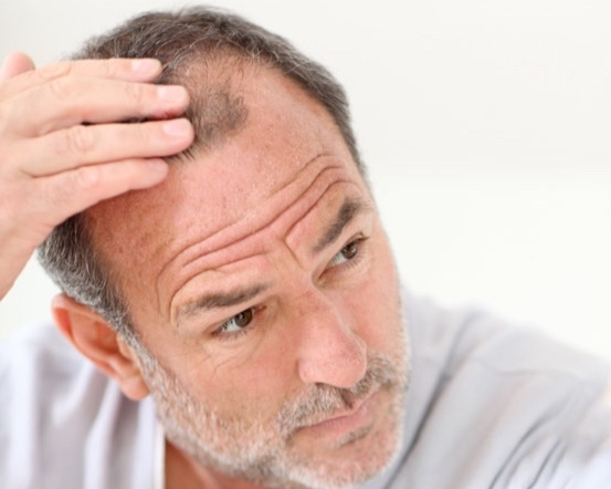 About Hair Loss - Find out what causes hair loss, and the options available for treatment.