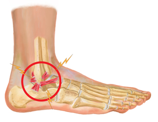 Ankle-Ligament-Injury.jpg