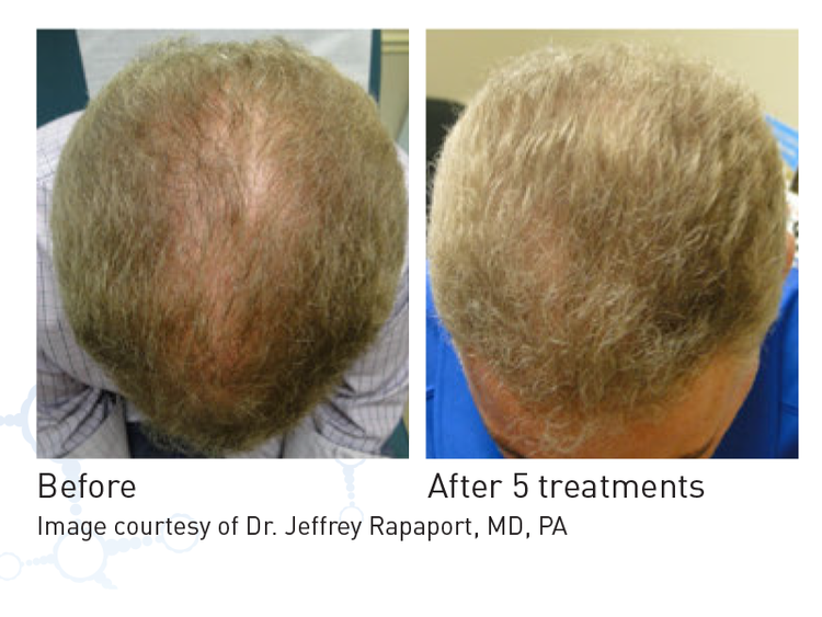 Prp By Restora Follikel Hair Restoration