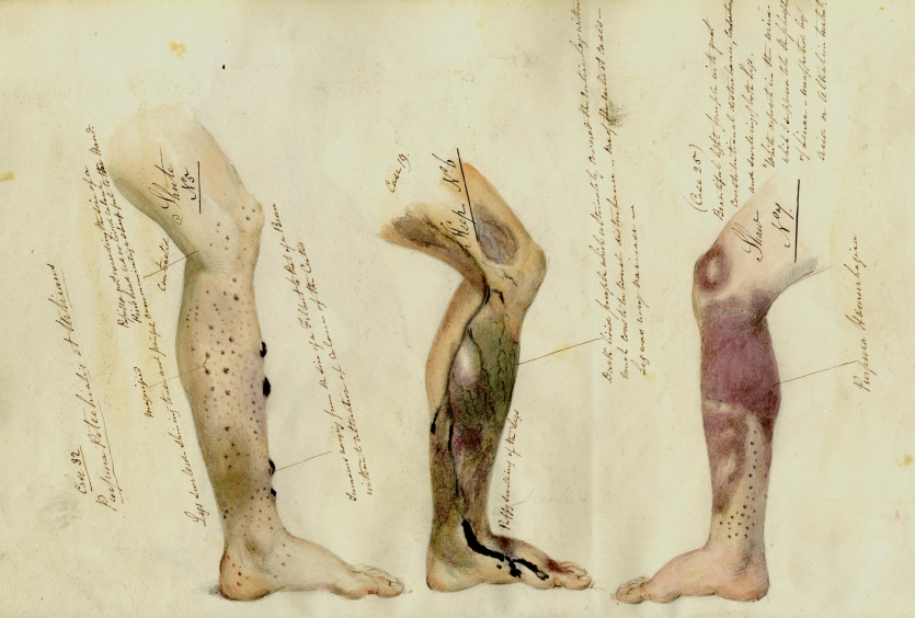 Watercolor illustrations of scurvy symptoms by Henry W. Mahon, a ship surgeon on the  Barrosa , a British convict ship, ca. 1841.  The National Archives UK