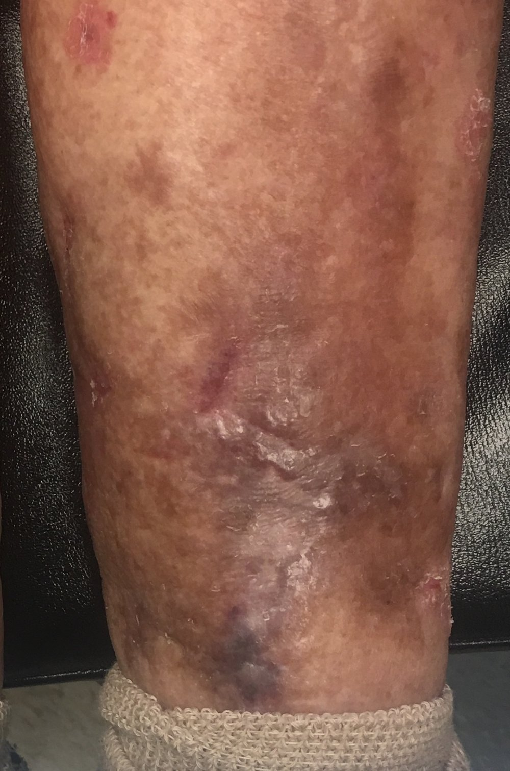 This is a healed skin ulcer following laser ablation and foam sclerosant injected into the diseased veins within the wound. -