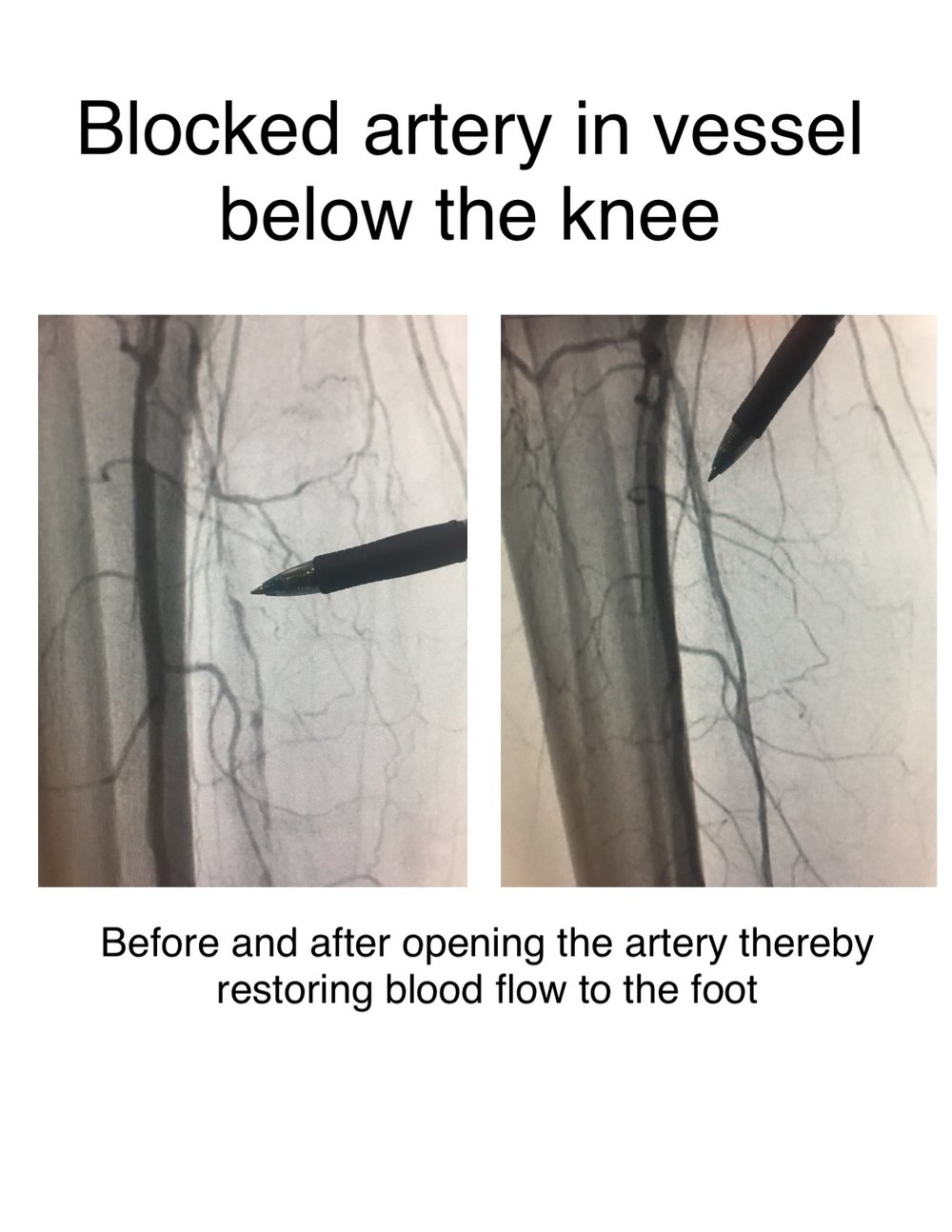 Blocked arteries in a leg can cause claudication. Claudication is pain typically in the calves when walking a particular distance that resolves with cessation of walking. The most common cause of this symptom is a blocked artery. We diagnose the problem in the office with ultrasound then open the artery in the hospital as outpatient. The artery is accessed usually through the opposite groin but sometimes through an artery in the foot under ultrasound and sometimes through the radial artery in the arm. Intervention is performed using balloons, wires, laser, and or diamondback orbital atherectomy. Plaque is removed and the vessel ballooned. This typically takes about anywhere from one hour to four hours and is done under anesthesia. The majority of patients go home following the procedure the same day.