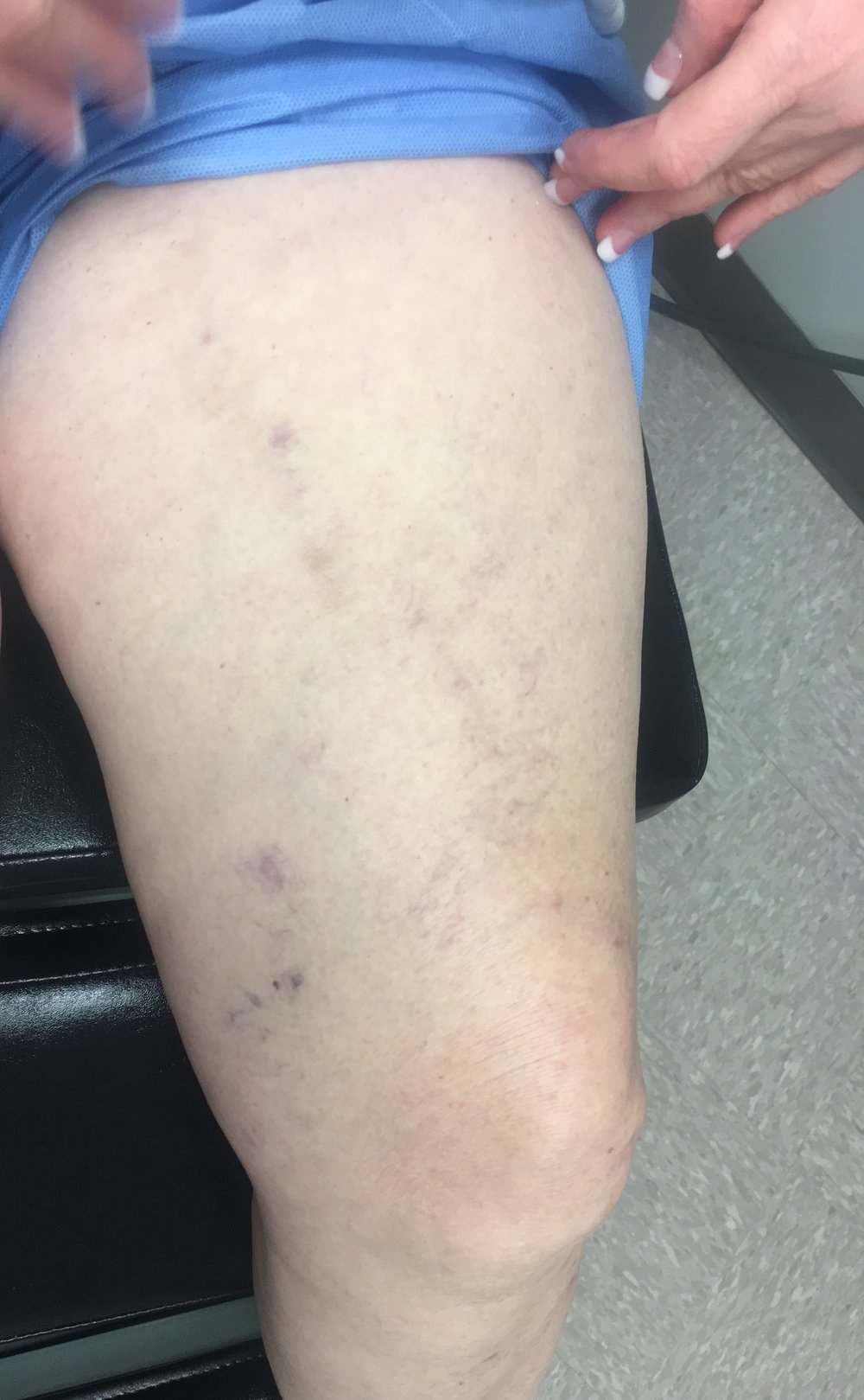 A few weeks after removal of the varicose vein in the office her leg feels great! No more pain or tenderness. No more burning, itching or heaviness. She has a few minor bruises left but no scarring. The bruises will disappear in a few more weeks. Overall procedure took about an hour in the office with local anesthesia and no pain. Connie is on her feet all day and now does not have to wear compression to ease the pain.
