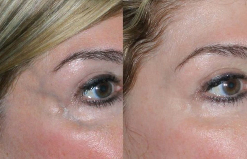 Treatment of blue veins of the face. Dr. Harrison is the only physician in Arkansas trained to treat these veins.