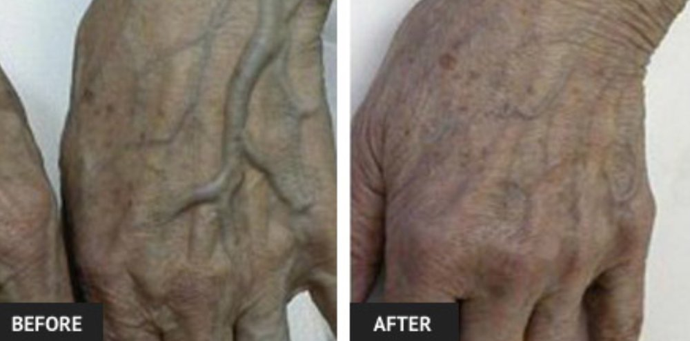Dr. Harrison is the only physician in Arkansas trained to remove hand veins