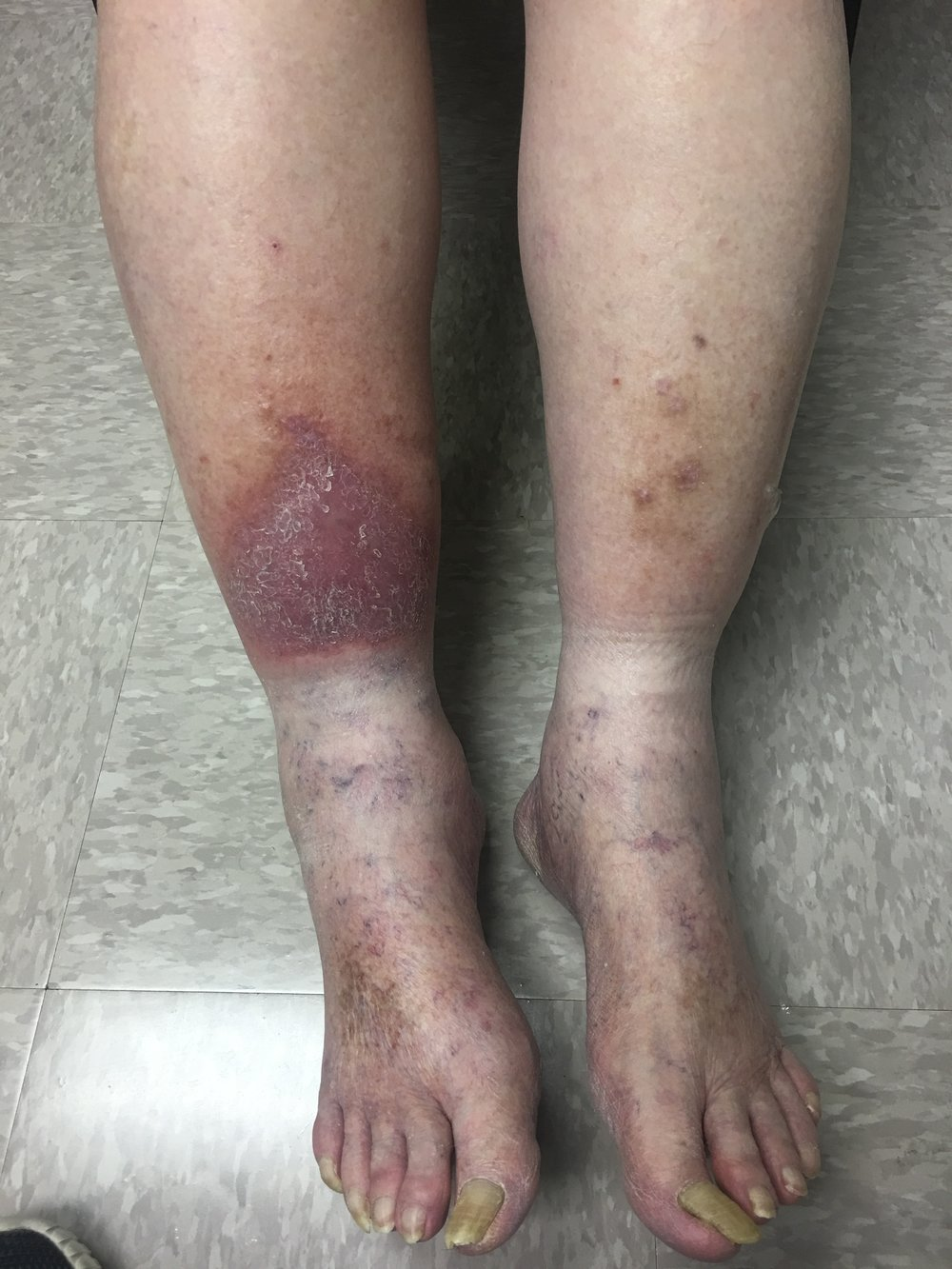 Is this your leg?Many venous stasis ulcers or skin ulcers begin like this and progress like below. We treat the cause of the ulcer so they heal and dont recur. -