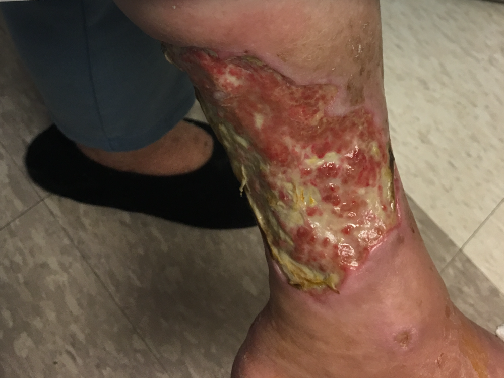 We treat skin ulcers just like this by treating the cause with nearly 100% cure rate! -