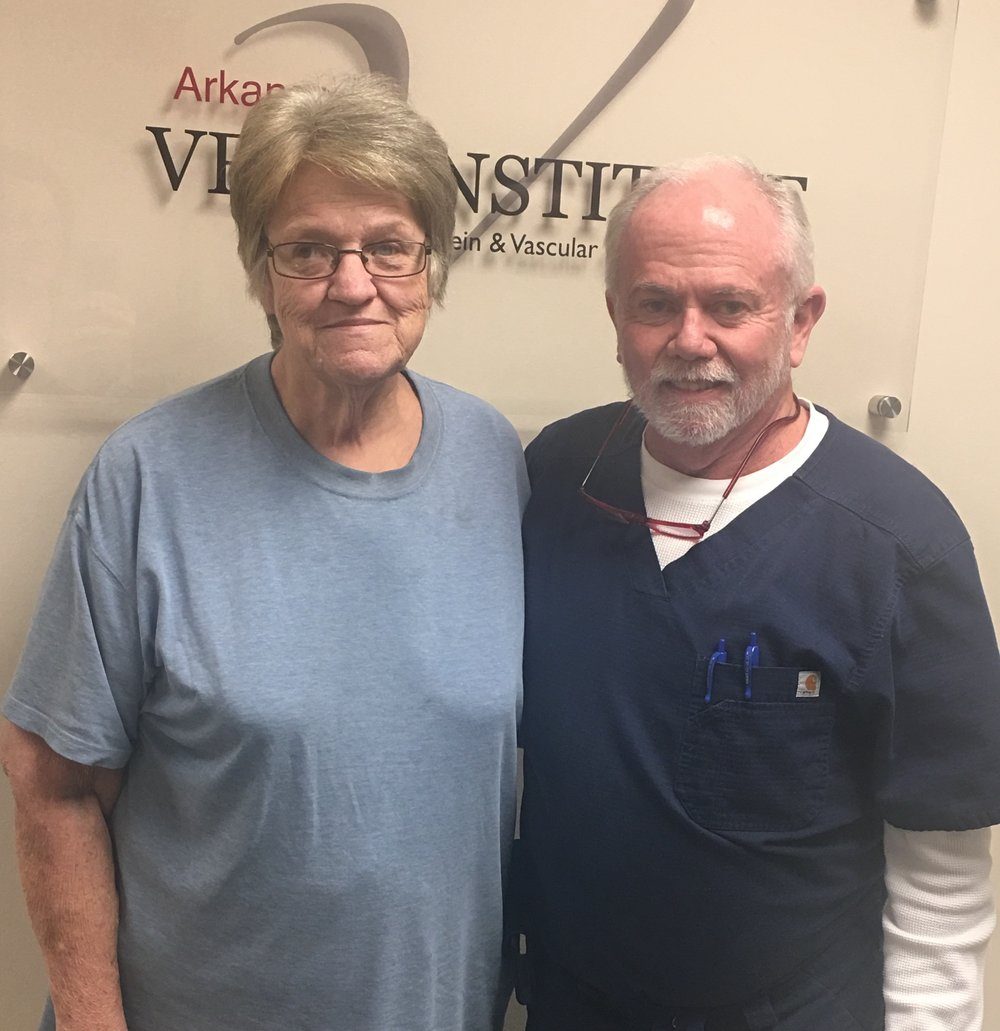 After laser ablation she is very happy that her symptoms of heaviness, edema, and leg pain have resolved. Laser is done in the office in one of our mini-surgical suites under local anesthesia. Most insurance and medicare covers the cost.