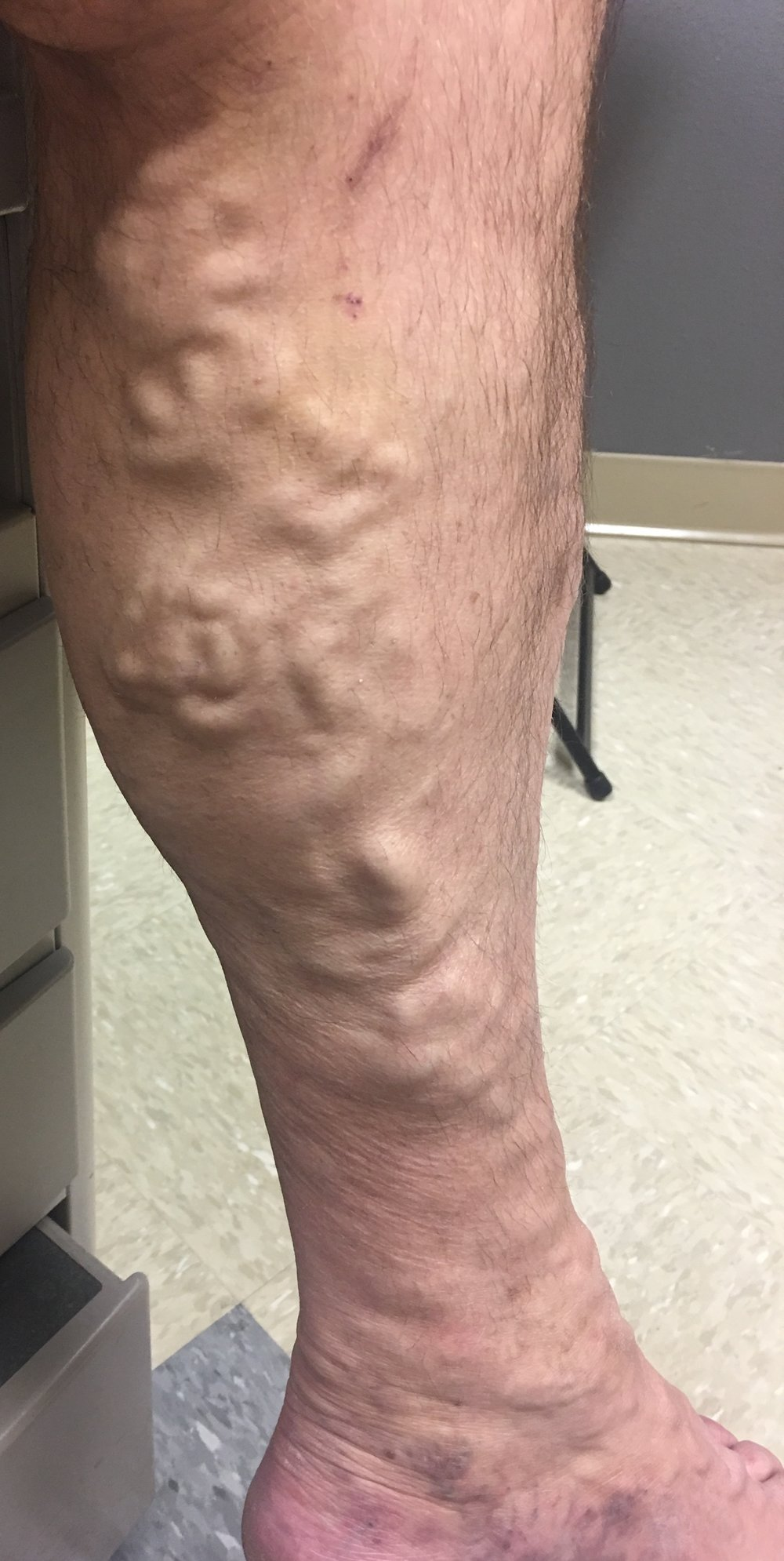 Varicose veins can be not only cosmetically unappealing but also painful and are usually caused from chronic venous insufficiency. They are treated in the office with either laser, foam, or removal. The treatment is painless. The large varicose veins do place you at risk for a deep vein thrombosis (DVT).