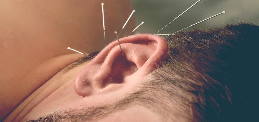 pin in ear.jpeg