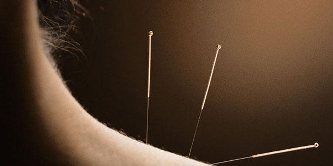 acupuncture_neck.jpg