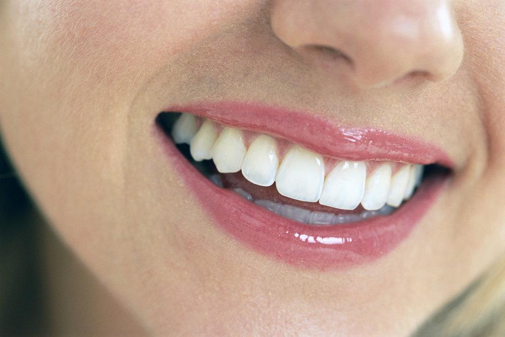 whiteteeth1.jpg