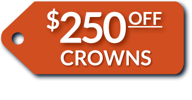 $250-off-Crowns.png