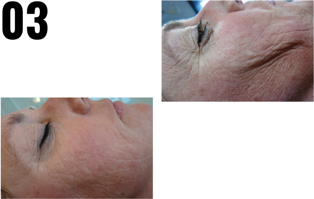 EXTREME HYDRATION & ANTI WRINKLE - START UP TREATMENT -