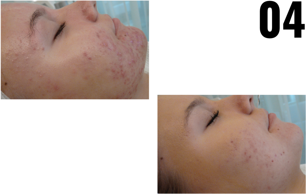 ACNE TREATMENT - CLEAR & FRESH CORRECTIVE TREATMENT -