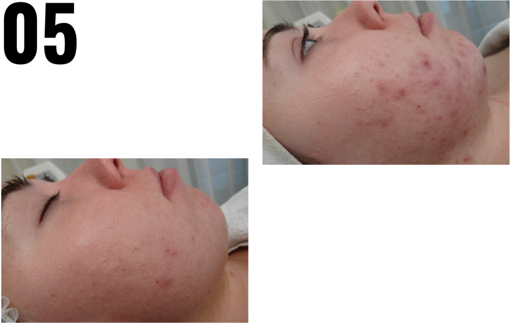 ACNE TREATMENT -CLEAR & FRESH CORRECTIVE TREATMENT -
