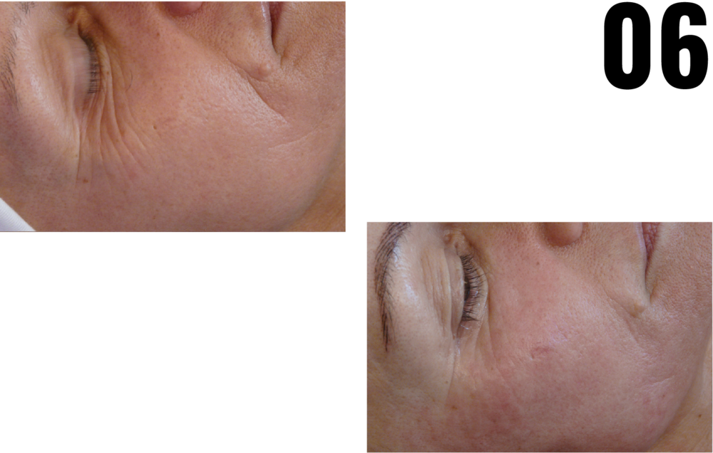 DEEP WRINKLE - CELL REPAIR - PROTECTIVE TREATMENT AND FOCUS TREATMENT -