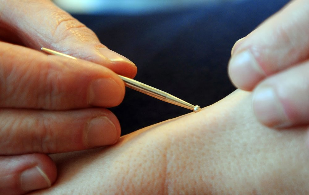 Acupuncture3.jpg