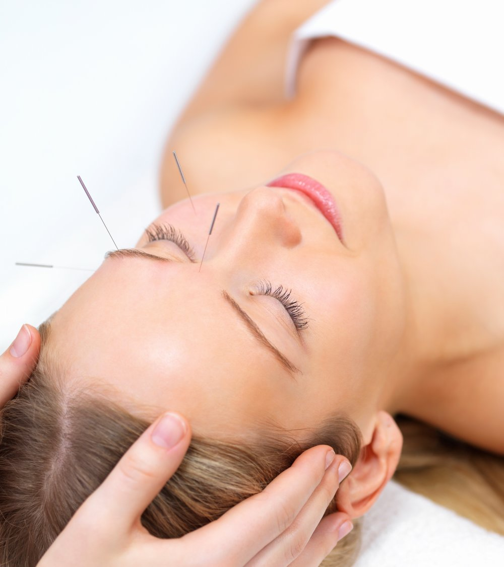 cosmetic-acupuncture-image.jpg