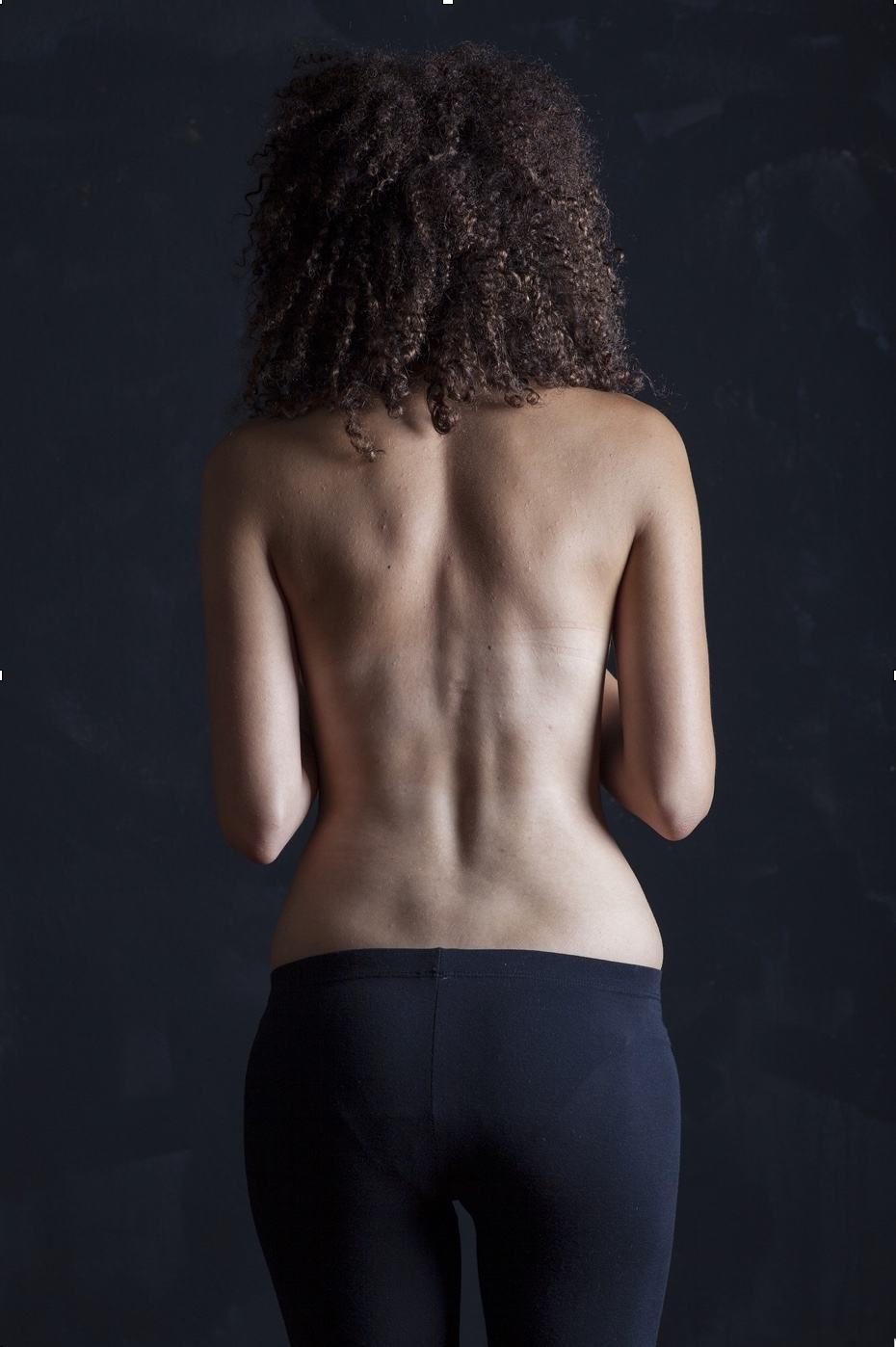 Avoid Back Surgery and Get Ahead of Low Back, Disc Problems and Pain and Numbness Radiating Into the Leg