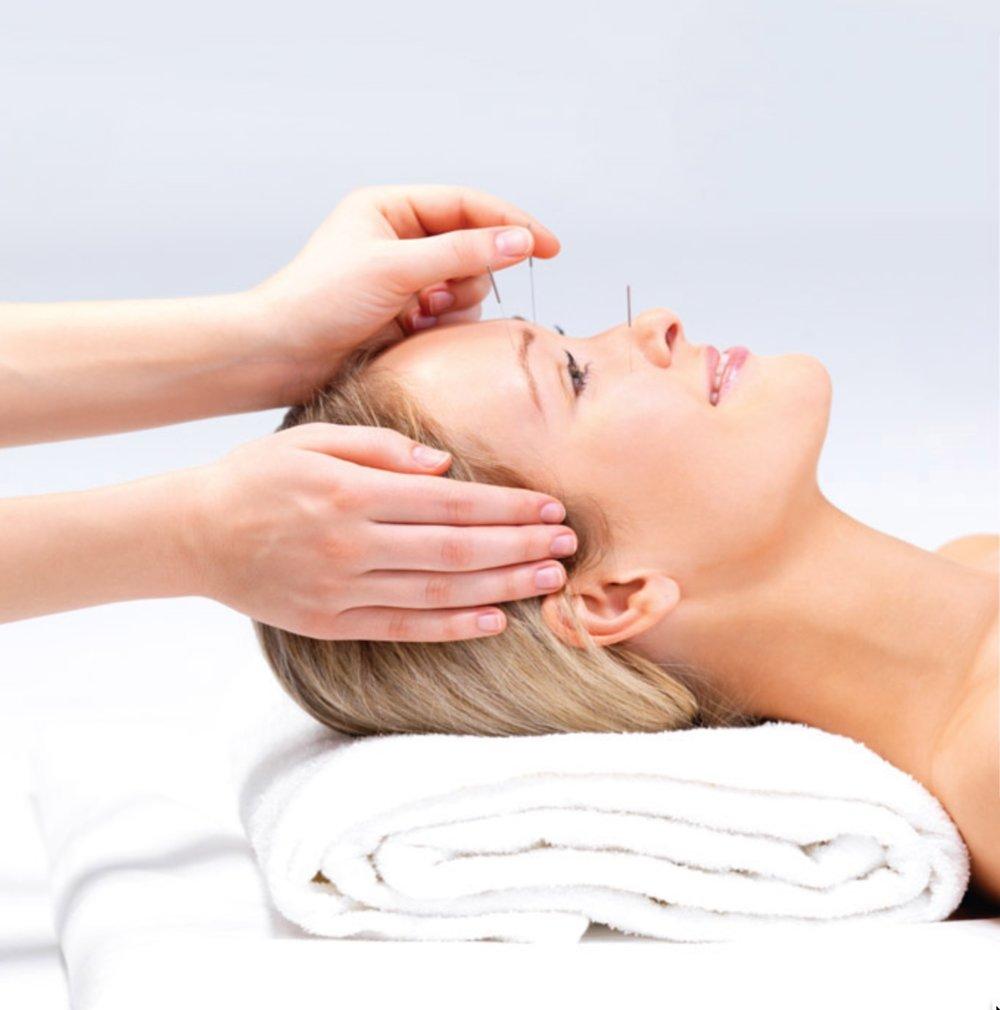 Energy Medicine: Chiropractic + Acupuncture = Genius