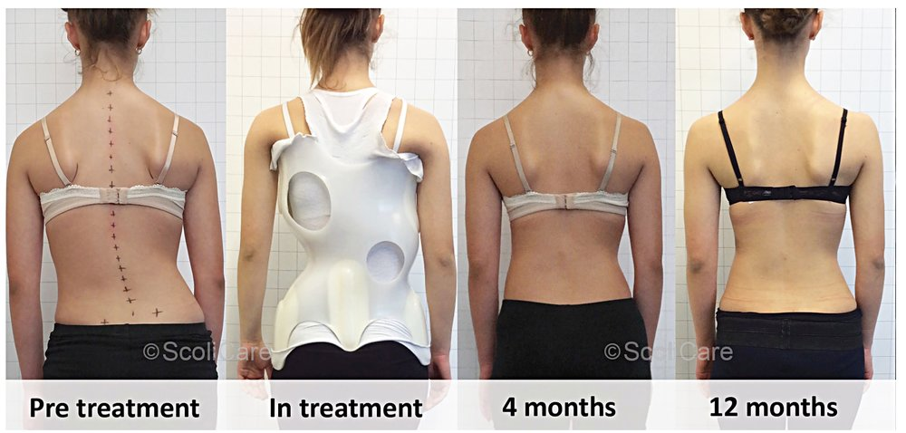 Not Your Same Old Back Brace. ScoliBrace by ScoliCare: A Leading Edge Method for Correcting Curvature of the Spine